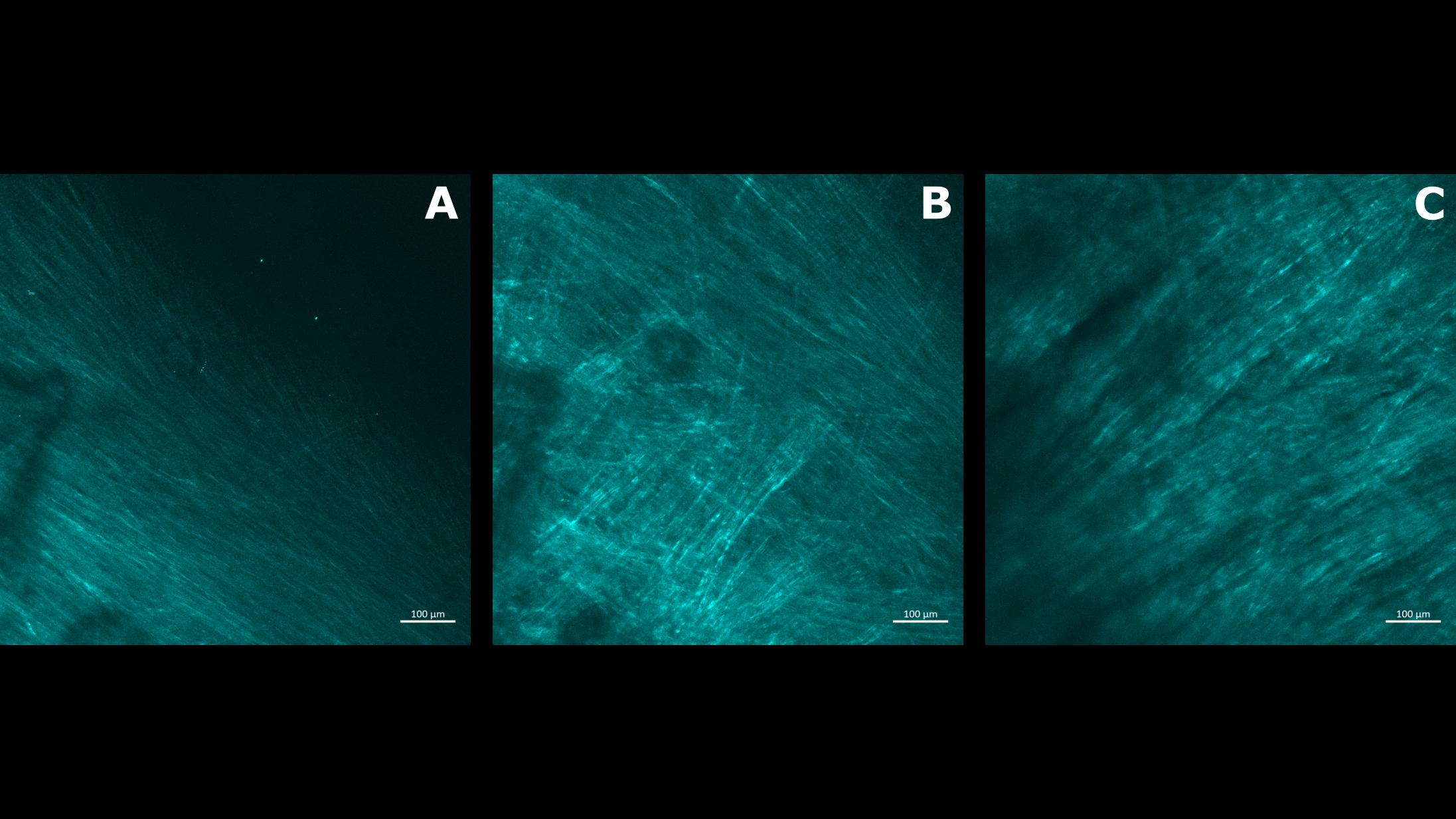 Collagen imaging