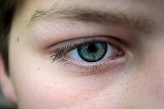 Cataract Surgery Bay City
