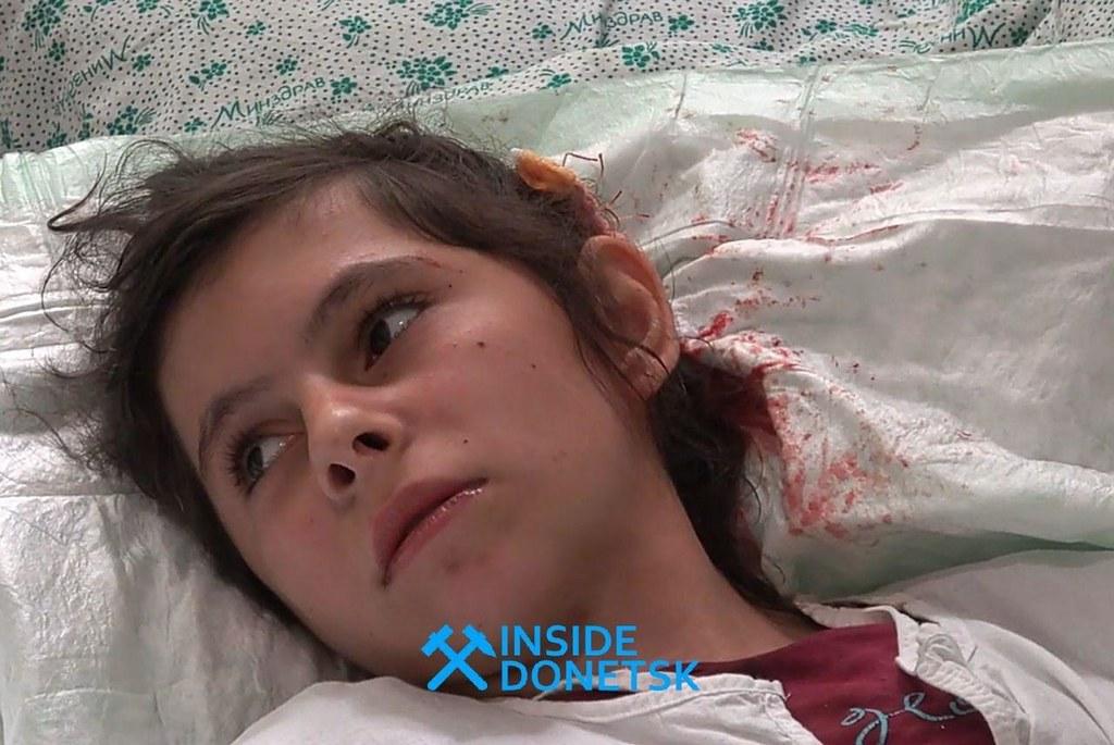 Jeune fille blessée par le tir des FAU contre Sakhanka