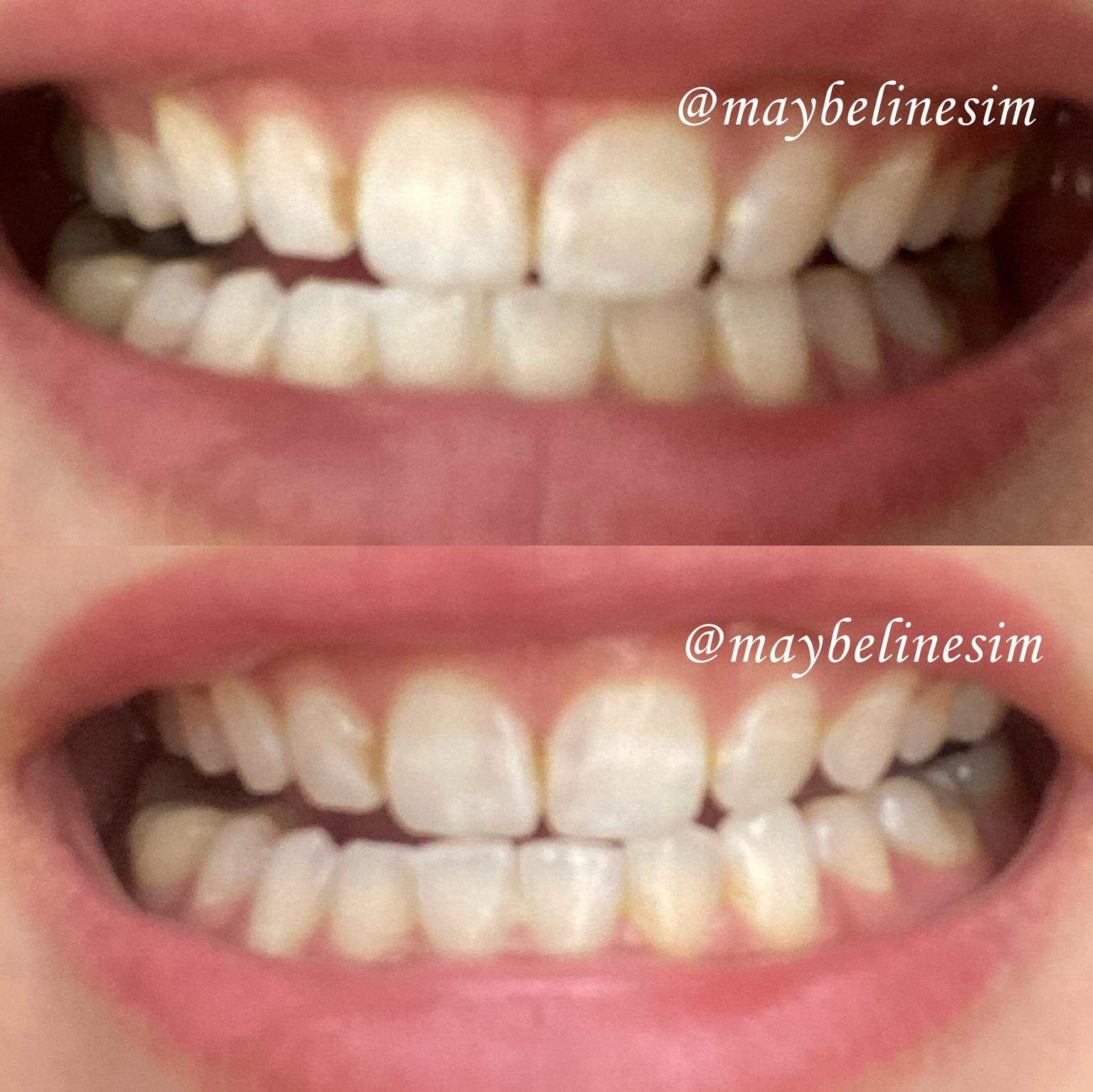 mooi beauty teeth whitening results