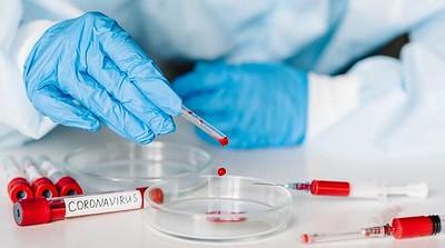 test sierologico coronavirus-3