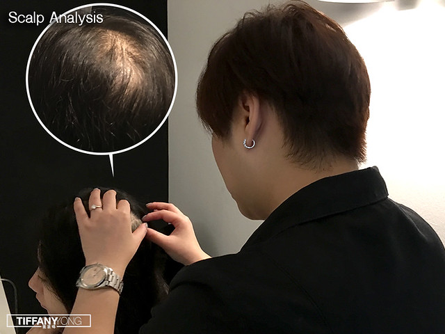 Estheclinic Scalp Analysis