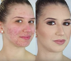 ACNE NO MORE!
