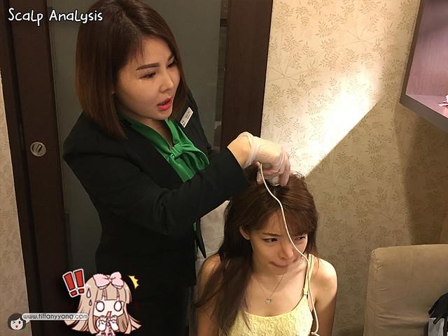 beijing-101-tiffany-yong-scalp-analysis