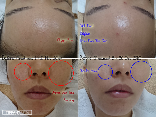 Skin Science Forlled Results 1