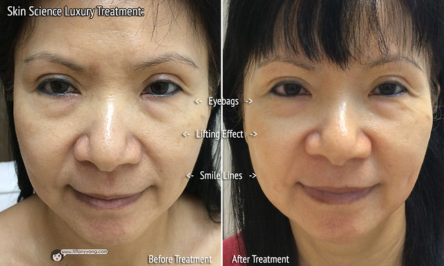 skin-science-luxury-treatment-before-after