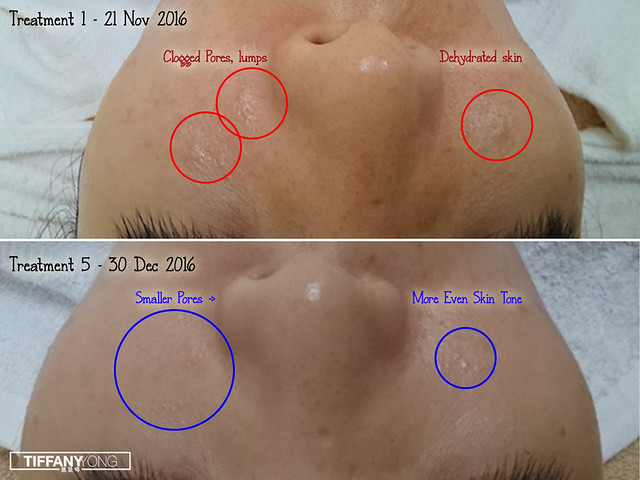 Skin Science Forlled Cheeks Results 3