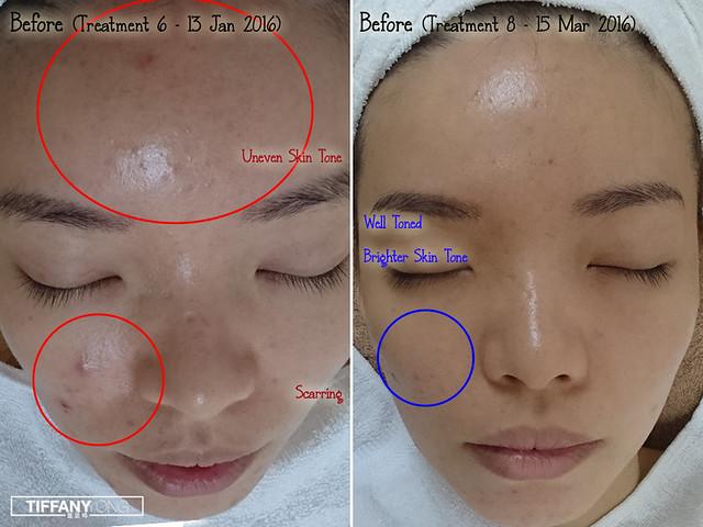 Skin Science Tiffany Yong Review 2_1