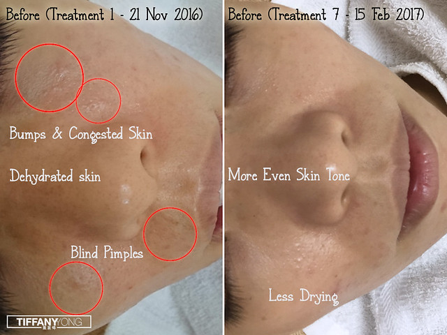 Skin Science Forlled Review 1n7 Treatment
