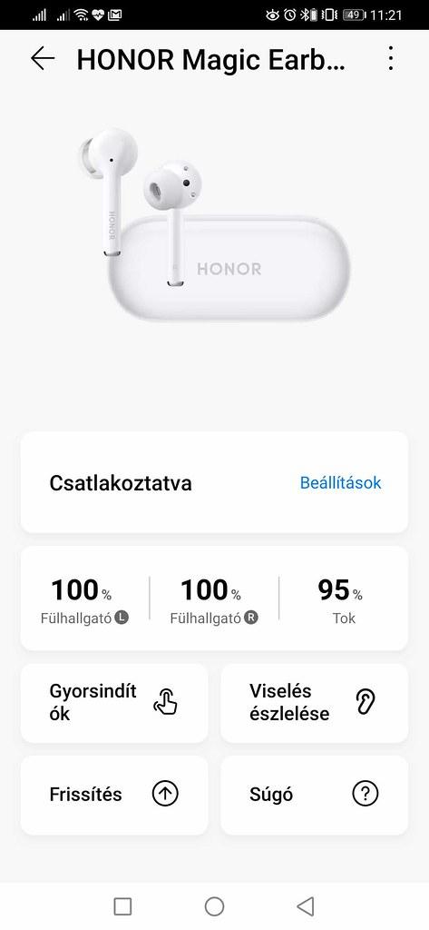 Honor Magic Earbuds teszt