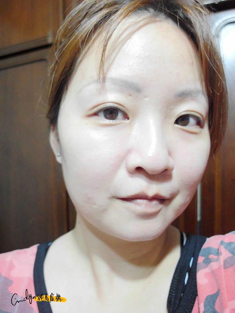 小V臉透明貼布