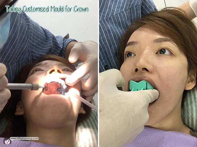 icare-dental-customised-mould