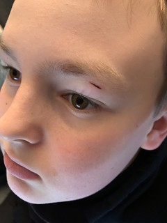 Kid busted his eye - we think on the beside cabinet | by b34r.girl