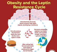 REMEDY of Leptin Hormone's Resistance to Fat Loss