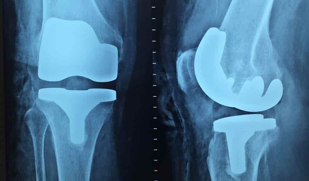 Des implants médicaux plus polyvalents et plus résistants