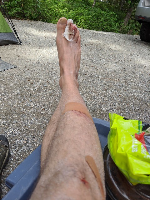 Camping Injuries