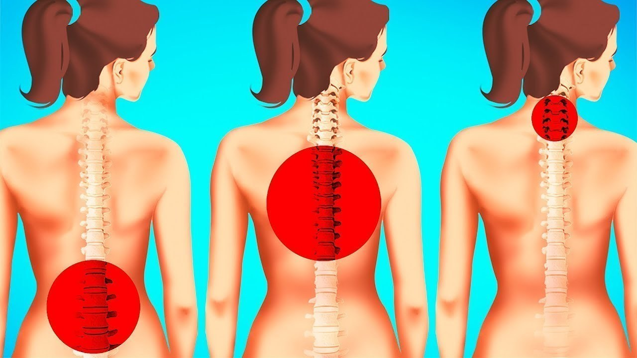 Como evitar dor nas costas e no corpo?