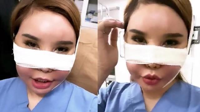 Safiey Illias Buat Rawatan Kosmetik RM1 Juta Hingga RM2 Juta