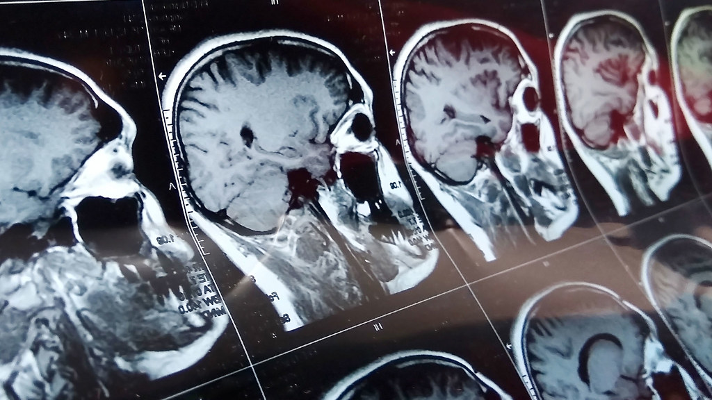 A series of MRI scans of the human brain