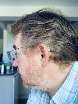 Side view of Stephen's head - with hearing aid bud just visible