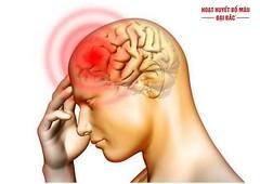 Bệnh thiếu máu não là gì? Nguyên nhân, triệu chứng và cách điều trị
