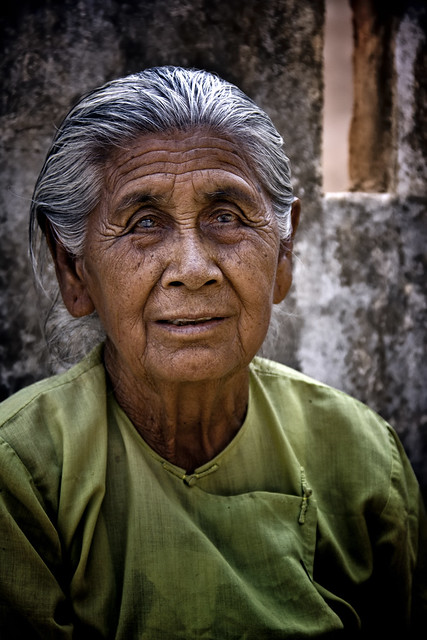 A Venerable Burmese Lady With Cataracts