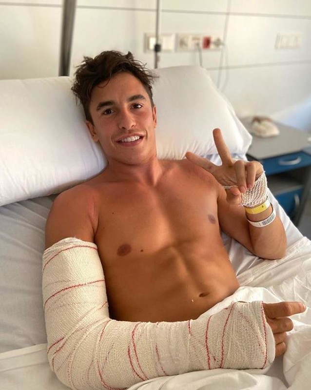 Marquez After Surgery Andalucia