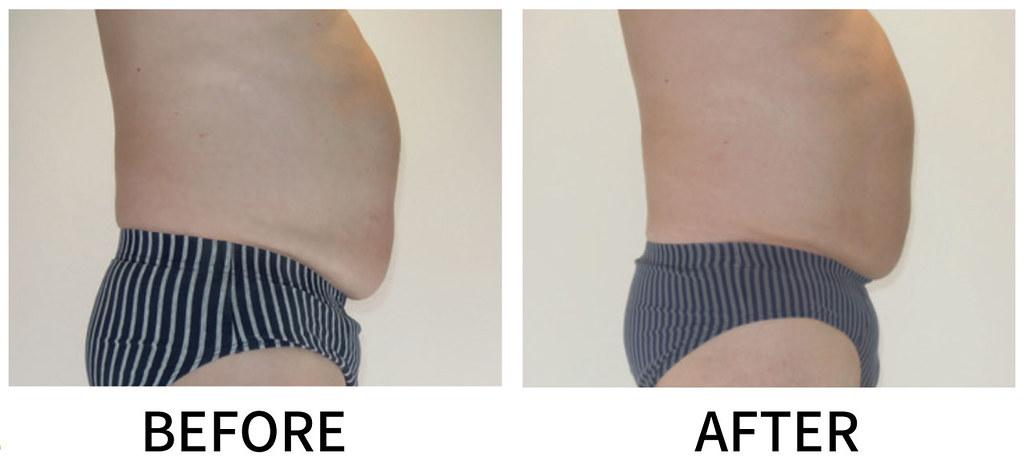 冷凍減脂幫您做身體雕塑!冷凍減脂針對你的腹部、腰部、上下背、大腿內外側、肥厚膝蓋、男性胸部等等局部位置做非侵入式的體態雕塑,冷凍減脂輕鬆減去您身體上的脂肪!