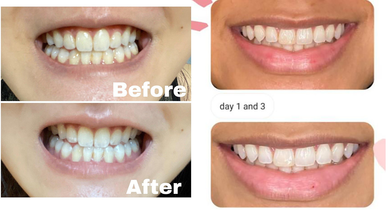 Mooi Teeth Whitening Kit Review