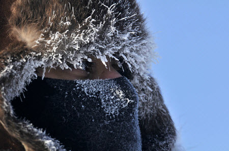 frost-face