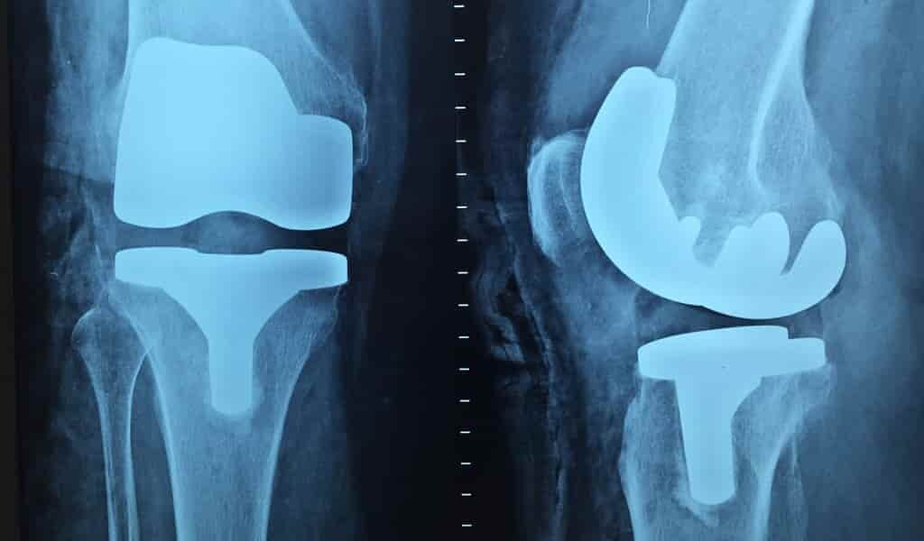 un-matériau-fait-de-coquille-oeuf-pou-de-meilleurs-implants