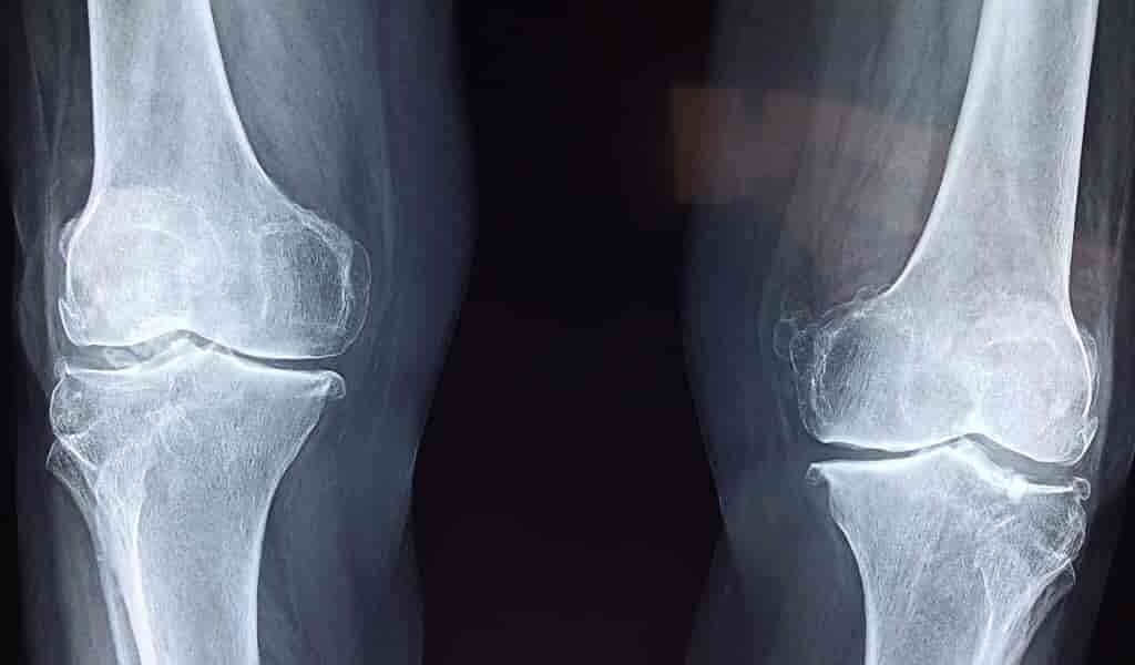 une-méthode-pour-régénérer-le-cartilage-des-articulations
