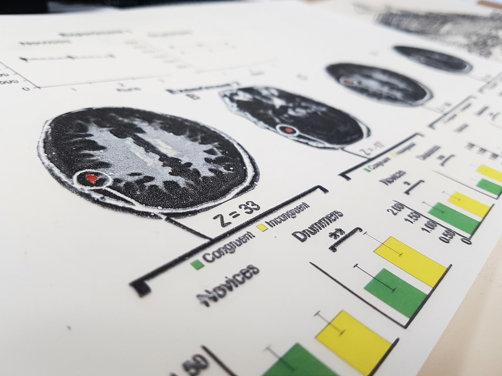A close up photo of a series of brain scans and charts