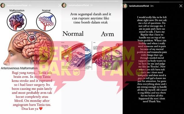 Tania Hudson Dedah Mengidap Penyakit Arteriovenous Malformation