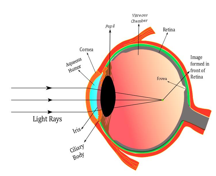 myopia diagram)