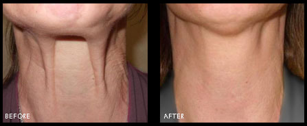 before-after-fibroblast