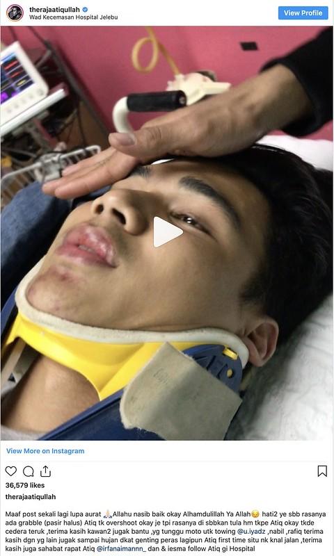 Atiq Azman Terlibat Kemalangan Motorsikal