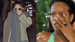Rihanna is pictured with a black eye and bruising after suffering accident on an electric scooter