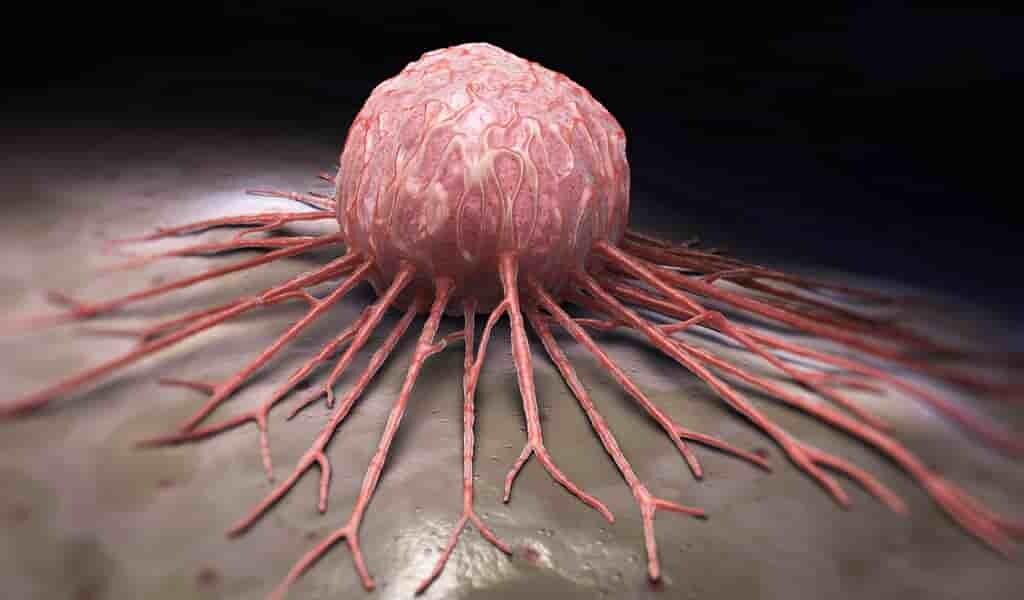 Un médicament qui empêche les tumeurs de croître