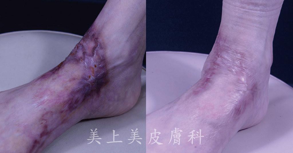 人的身上都會有疤痕!隨著醫療的進步,可以透過很多種疤痕治療的方法來消除疤痕,治療疤痕最好的時間是疤痕一出現就馬上治療,越早開始進行疤痕治療效果會越好。