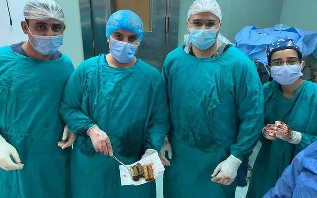 5753 Doctor extracts 6,500 Egyptian pounds from a patient's stomach 0