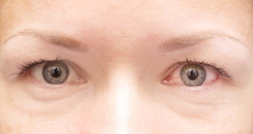 des-niveaux-élevés-antioxydants-protègent-du-glaucome