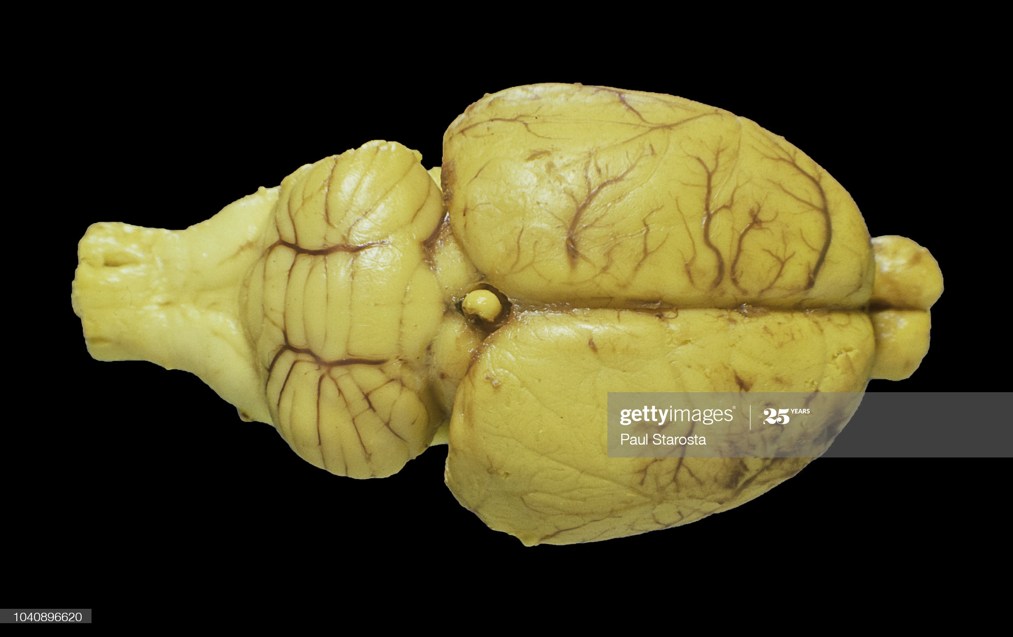 https://www.gettyimages.co.nz/detail/photo/rat-brain-royalty-free-image/1040896620?adppopup=true