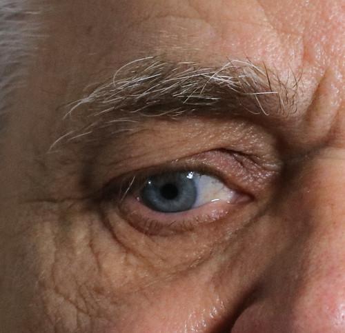 Eye Reference #80