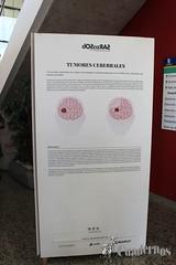 exposicion-dos-caras-dano-cerebral-adquirido-tomelloso-ciudad-realIMG_4467