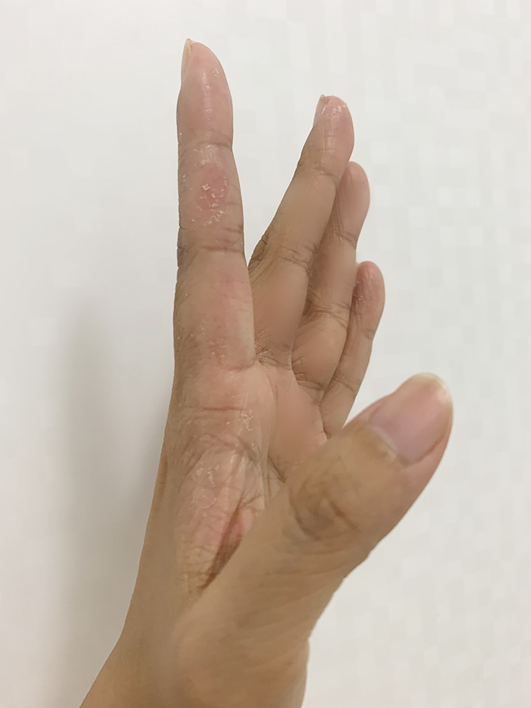 2020-07-19_hand