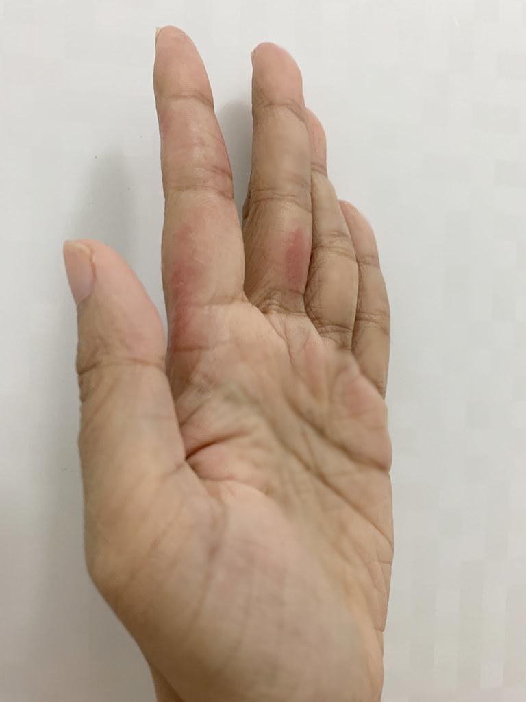 2020-08-08_hand