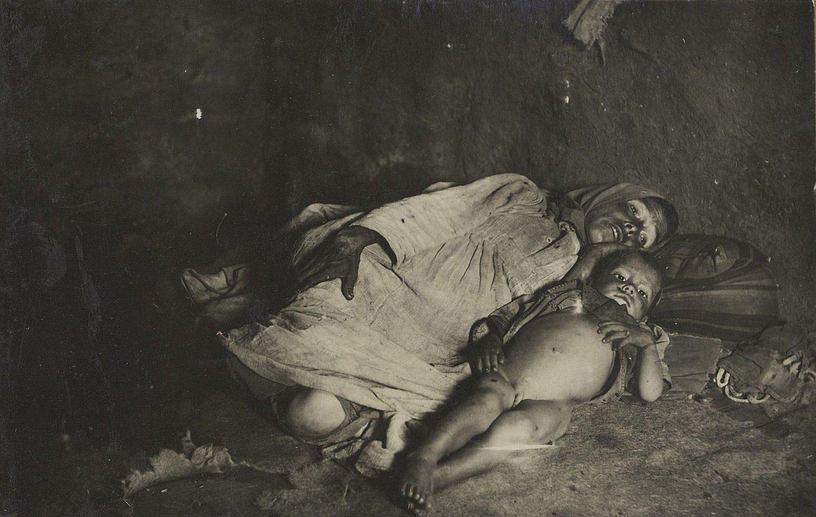 «Мать и ребёнок (татары), опухшие от голода, беспомощные, лежат в своей избе»(Самарская губ.)