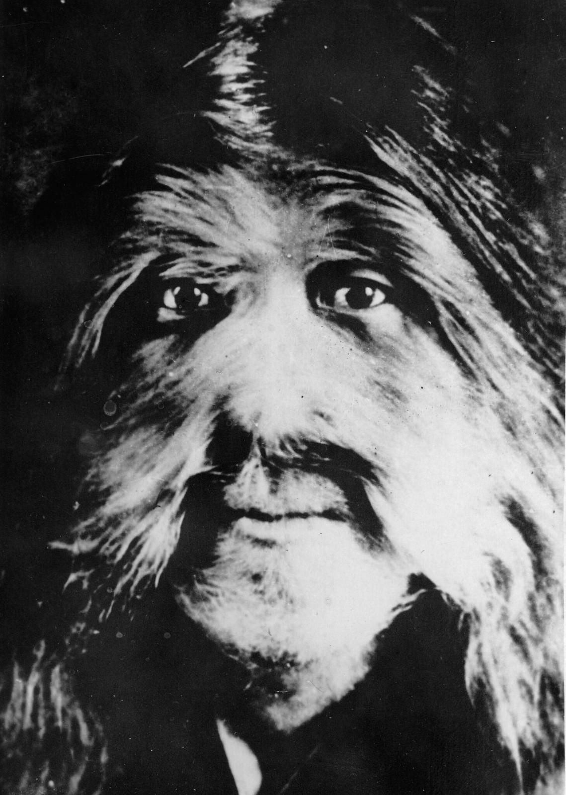 1920. Портрет мужчины, живущего в районе Долон Нор, тело и лицо которого полностью покрыты волосами. Мужчина живет на попрошайничество и пожертвования жителей