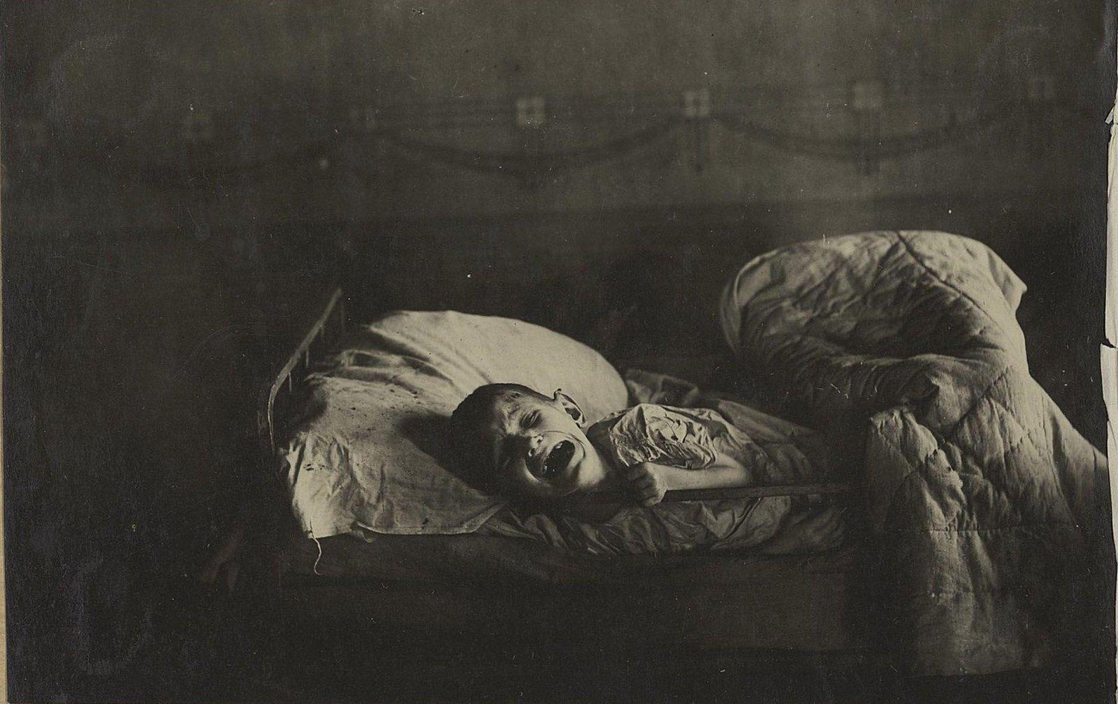 Стонущий от боли и мук изголодавший ребёнок (Самарская губ., Бузулукский уезд, г. Бузулук)